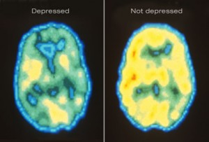 Any level or form of depression results in a chemical imbalance in hormones.